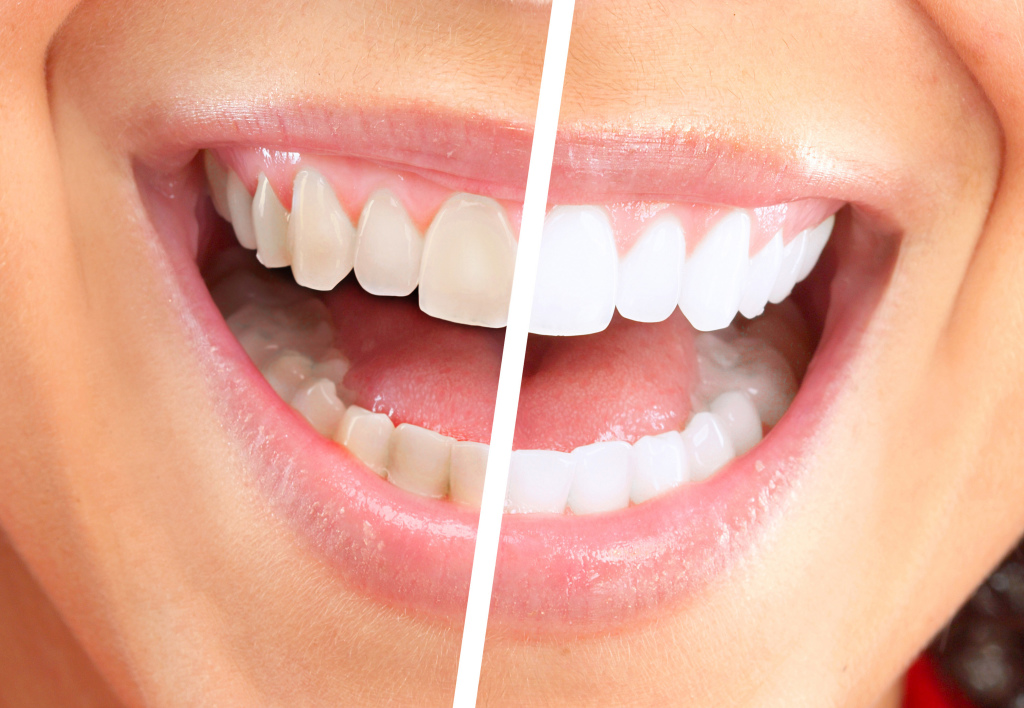 teeth-whitening-chandler-az